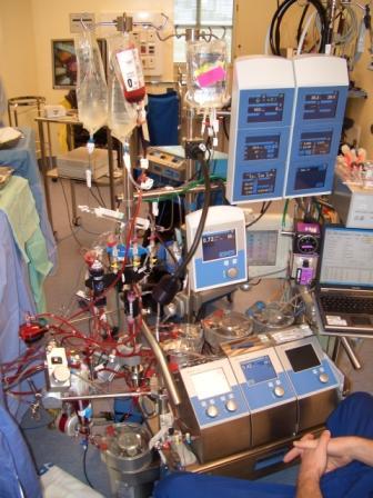 Paediatric Cardiopulmonary Bypass
